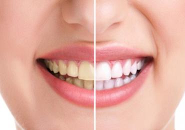 Tips Mengatasi Gigi Kuning Dengan Benar
